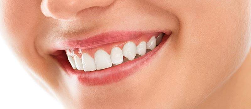 Top 7 Amazing Benefits of Laser Gum Contouring