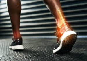 5 Frequently Asked Questions About Achilles Tendon Rupture