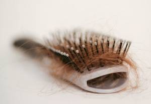 7 Medical Conditions That Can Cause Hair Loss