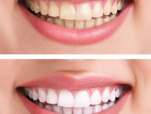 5 Teeth Whitening Myths Busted
